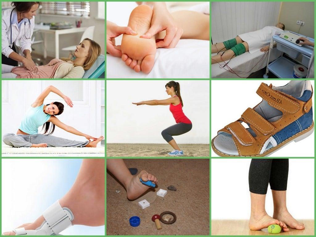 Вальгусная деформация коленных суставов, как лечить вальгусную деформацию ног?
