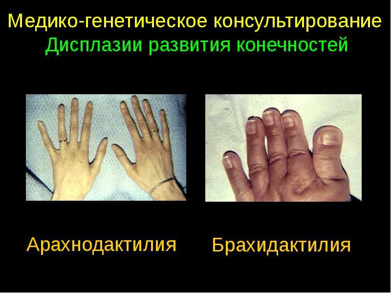 Укорочение фаланг или брахидактилия у ребенка