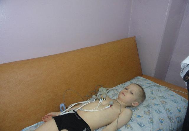 Аритмия у детей и подростков: что это такое? симптомы и лечение