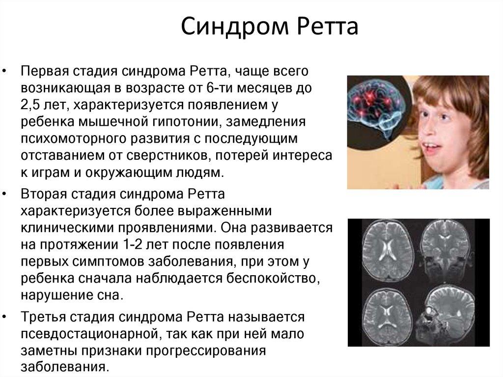 Признаки синдрома ретта, лечение, прогноз и диагностика :: syl.ru