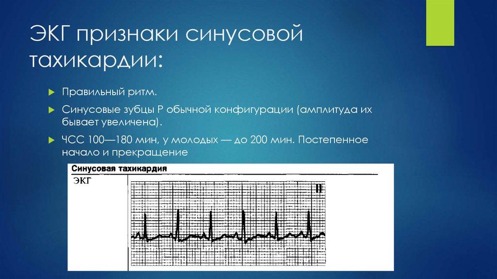 Тахикардия у новорожденного - wikilechenie.ru
