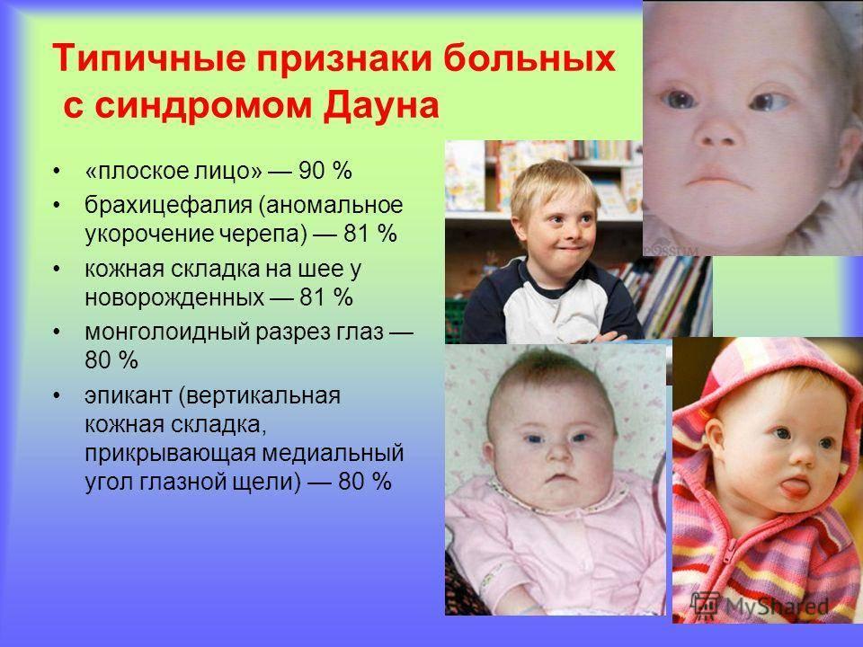 Синдром дауна (трисомия 21). причины, симптомы, признаки, диагностика и лечение патологии :: polismed.com