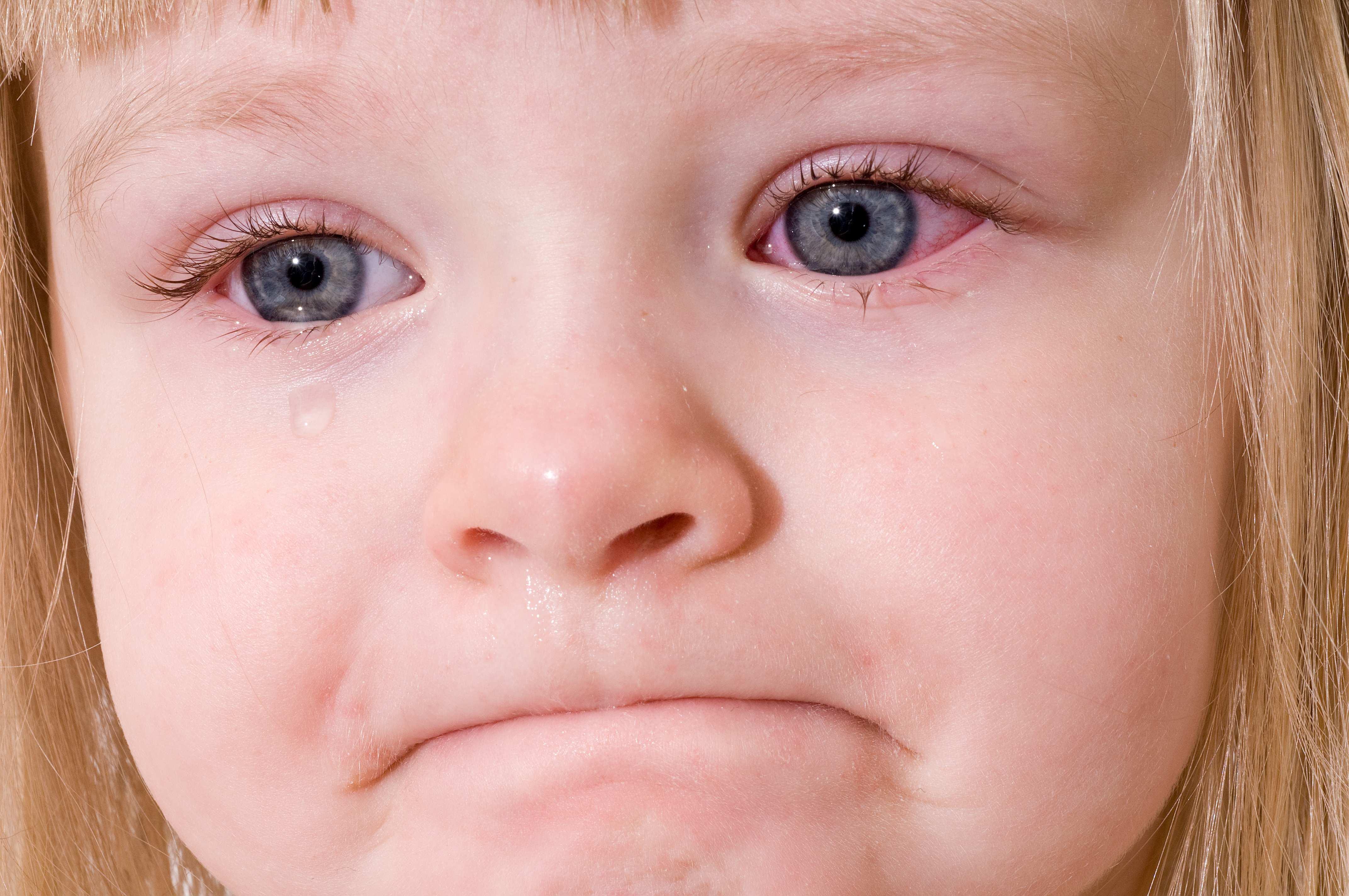 Аллергический конъюнктивит у детей (18 фото): симптомы и лечение ребенка, капли