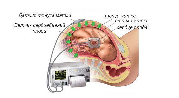 Тонус матки по задней стенке при беременности: особенности
