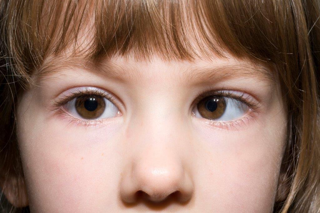"""Амблиопия у детей: причины, симптомы и лечение - """"здоровое око"""""""