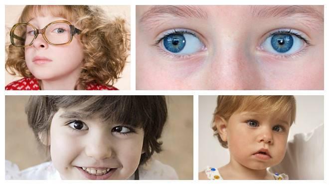 Косоглазие у детей – виды, причины и лечение. как исправить косоглазие у ребенка