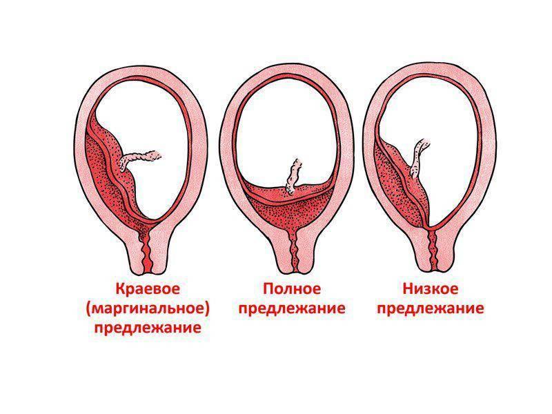 Предлежание плаценты: «безвыходная» беременность - наблюдение беременности.  здоровье