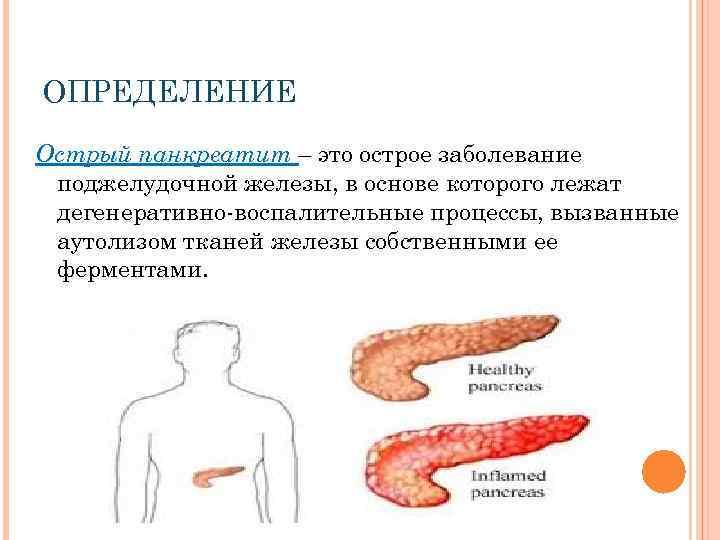 Особенности панкреатита у детей: симптомы и лечение острого и хронического воспаления поджелудочной железы