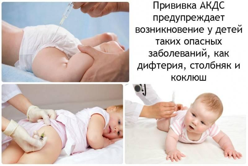 Сыпь на теле у ребенка после прививки акдс и полиомиелит