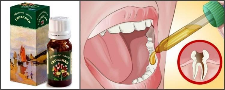 Обезболивающие для детей от зубной боли: гели при прорезывании зубов, детские препараты, таблетки