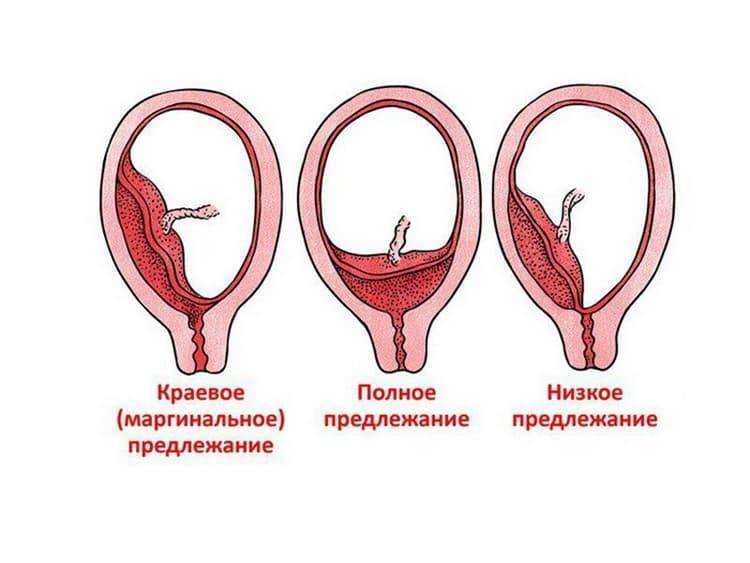 Что означает краевое предлежание плаценты, чем оно опасно и на что влияет?