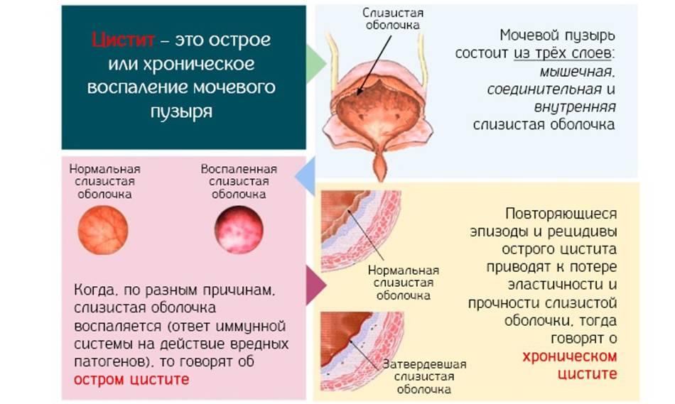 Посткоитальный цистит: причины, диагностика, лечения и профилактика
