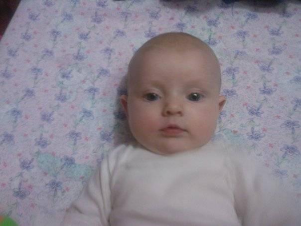 Косоглазие новорождённых: что нужно знать родителям