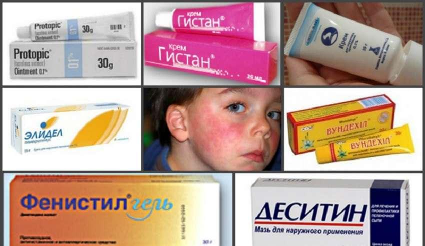 Обзор мазей, кремов от аллергии для детей