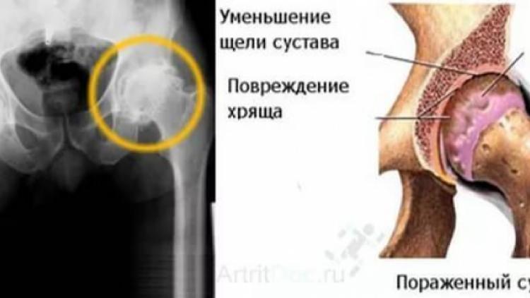 Артрит тазобедренного сустава: симптомы и лечение, как лечить дома