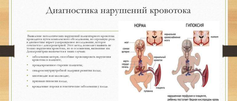 Нарушение кровообращения при беременности