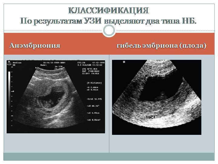 Замершая беременность: почему возникает и как избежать