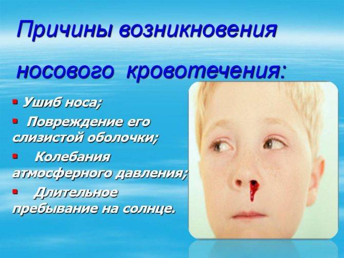 Часто идет кровь из носа у подростка