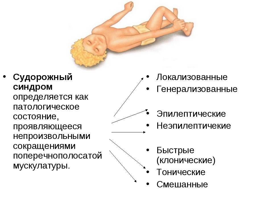 Эпилепсия у детей: причины возникновения, признаки и симптомы, лечение и диагностика