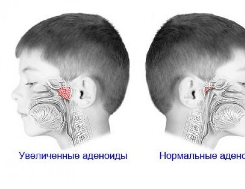 Аденоиды - причины, симптомы, диагностика и лечение аденоидов   ао «медицина» (клиника академика ройтберга)