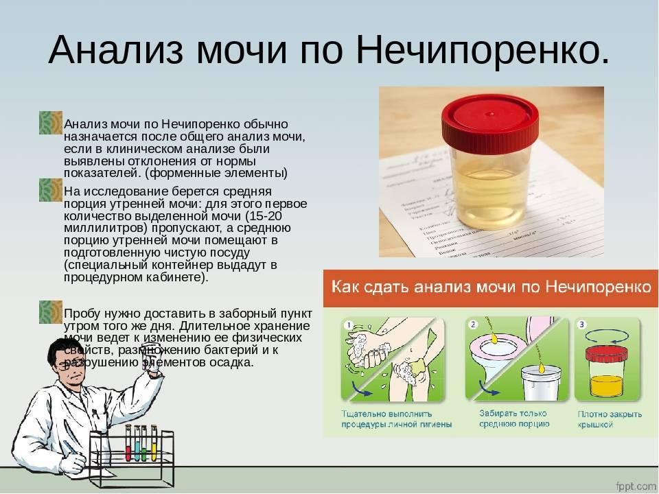 Общий анализ мочи при беременности: как правильно собрать и сдать урину, зачем нужен ватный тампон?
