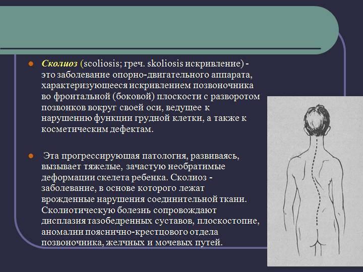 Сколиоз у детей (40 фото): лечение позвоночника, лфк - упражнения и массаж, причины и профилактика, особенности 1 степени