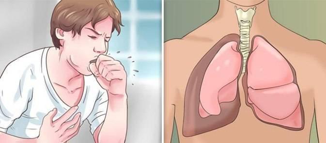 Как помочь ребенку при кашле задыхаюсь