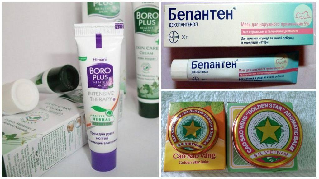 Что помогает от укусов комаров