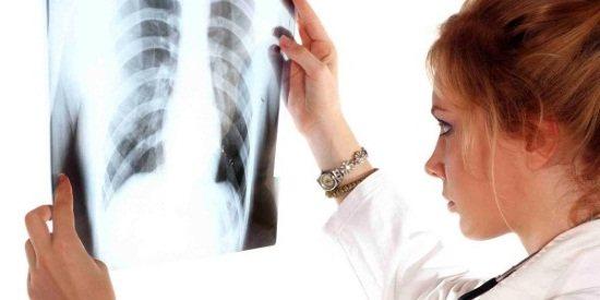 Рентген грудной клетки ребенку: снимок здоровых легких, вред рентгенографии