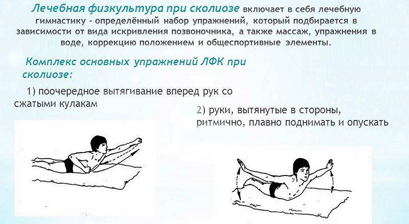 Лфк при сколиозе у детей — особенности выполнения