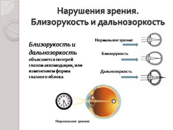 Дальнозоркость у детей (26 фото): аппаратное лечение малышей до 1 года и 2-7 лет, причины врожденной болезни, мнение комаровского