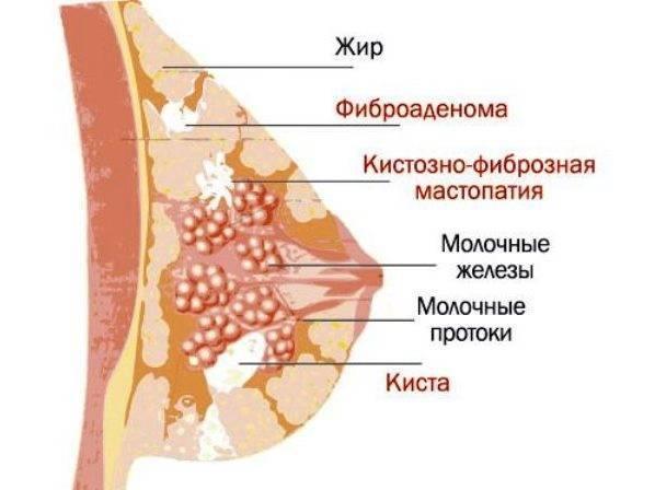 После месячных тянет низ живота и набухла грудь и болит