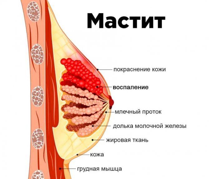 Появление уплотнений в молочной железе при грудном вскармливании — портал о заболеваниях груди