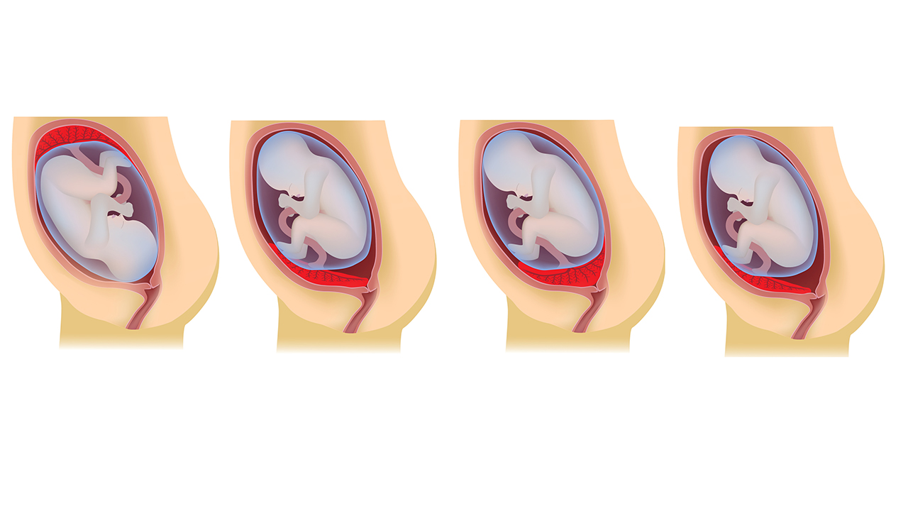 Низкая плацентация при беременности: что это такое, чем опасна, роды, что делать если плацента низко расположена / mama66.ru