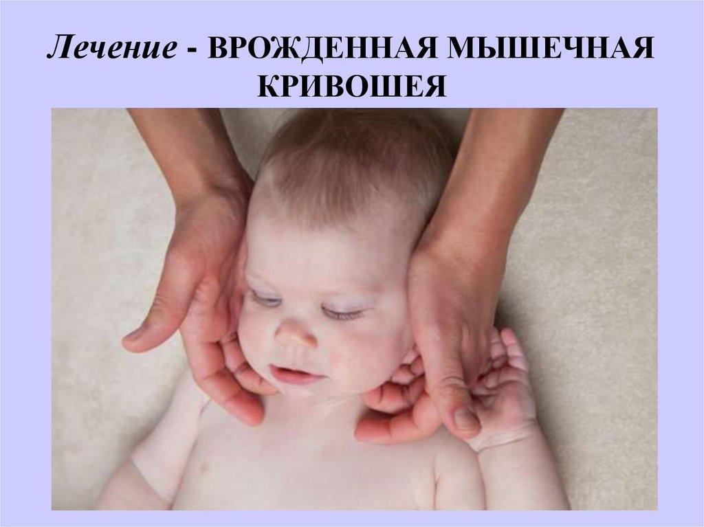 Кривошея у новорожденных и грудничков до года