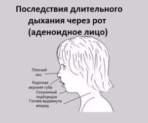 Одышка (диспноэ): причины нехватки воздуха, лечение затруднённого дыхания