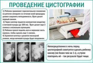 Микционная цистография у ребенка - здоровье малыша и все что с ним связано - страна мам