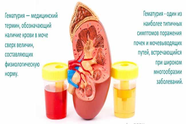 Кровь в моче у детей и подростков: причины и методы лечения. причины появления следов и сгустков крови в моче у новорожденного и ребенка старше года кровь в моче у девушки подростка