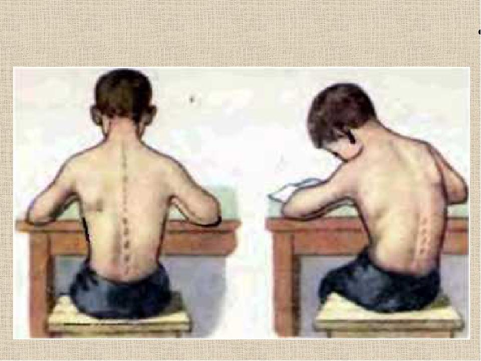 Бич современных детей, или 12 факторов развития сколиоза