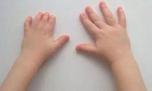Брахидактилия - как наследуется, причины, лечение