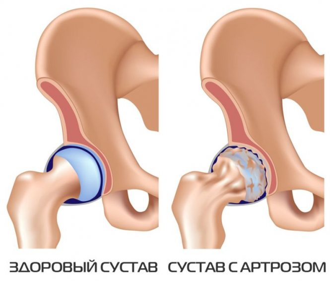 Лечение воспаления тазобедренного сустава у ребенка, симптомы и причины детского артрита