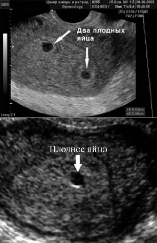 Эмбрион не визуализируется на 6 неделе - беременная
