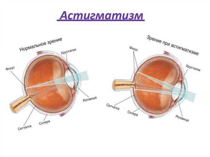 Очки или операция: лечится или нет смешанный и врожденный астигматизм у детей?