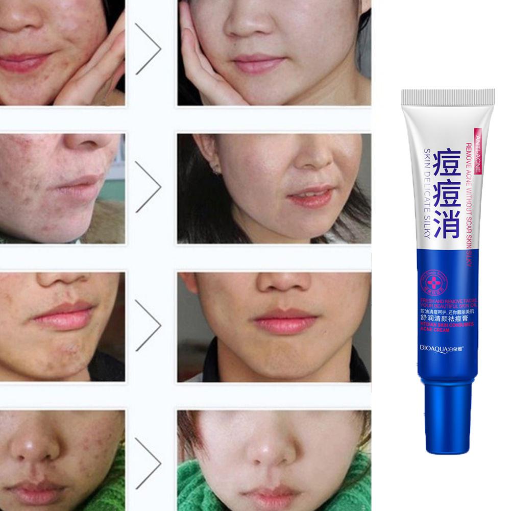 Средства от шрамов и рубцов на лице для детей: самые эффективные кремы и мази