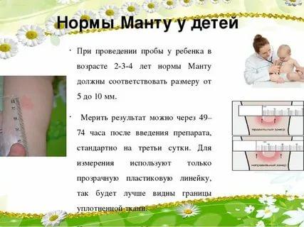 Сколько мм должен быть размер манту у ребенка, его допустимое значение в разном возрасте, норма прививки