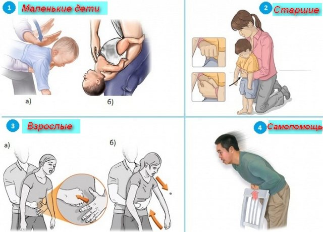 Что делать, если грудной ребенок подавился