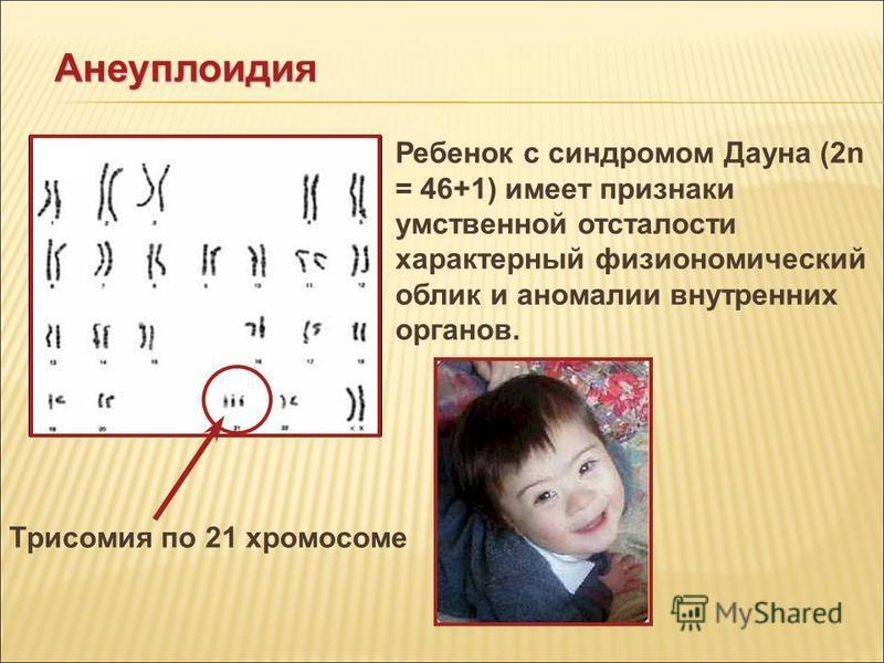 Синдром дауна - описание, формы синдрома дауна, механизм появления синдрома. причины