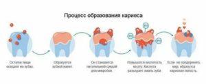 Можно ли остановить кариес молочных зубов у детей раннего возраста