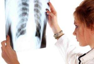 О ранних признаках и 12 клинических формах туберкулеза у детей рассказывает кандидат медицинских наук