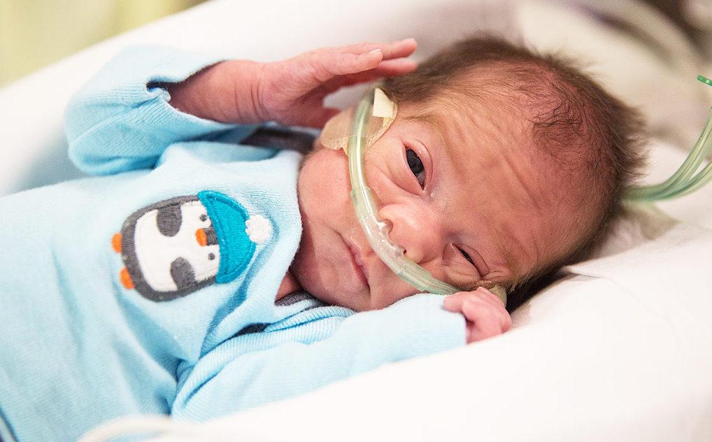 Недоношенный ребенок: как его лечить и развивать. развите недоношенного ребенка
